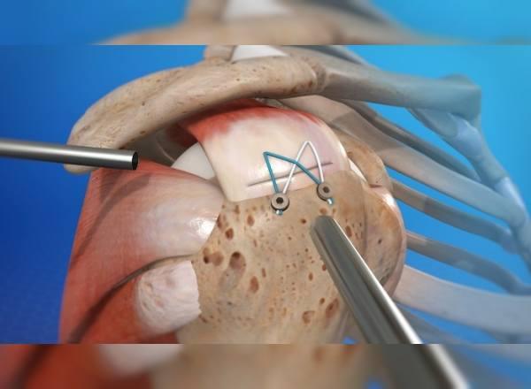Omuz Artroskopisi Ameliyatı