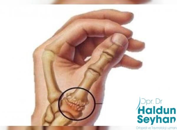 https www haldunseyhan com basparmak kok ekleminde kireclenme osteoartrit nedir
